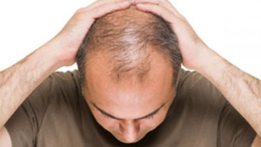 Do You Have Hair loss Issues?